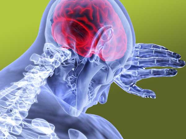 Epilespie ist eine Fehlfunktion im Gehirn